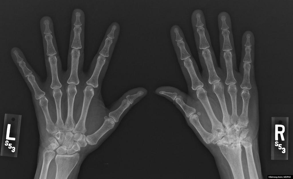 orvosi enciklopédia térd artrózis
